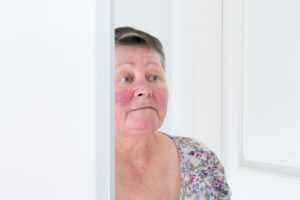Rosacea Skincare Tips: New Article Featured in the Organic Daily Post